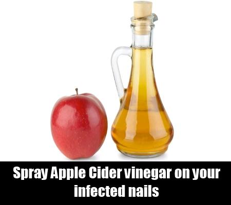 Spray Apple Cider Vinegar On Your Nails
