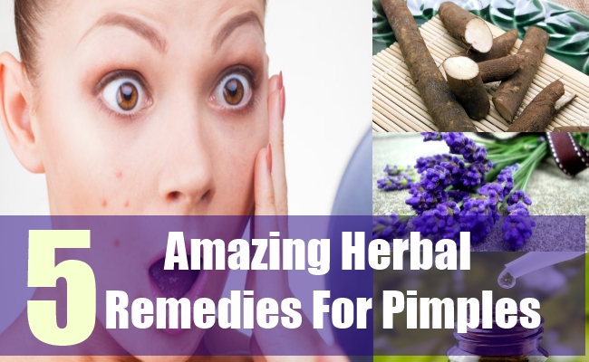 5 Amazing Herbal Remedies For Pimples