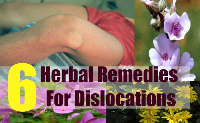 6 Herbal Remedies For Dislocations