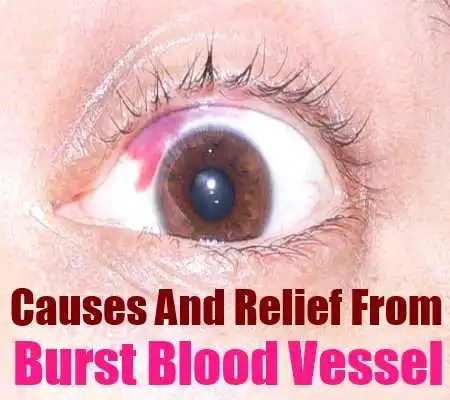 Burst Blood Vessel
