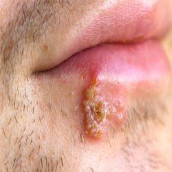 Fever Blisters Natural Treatments And Cures Natural Home