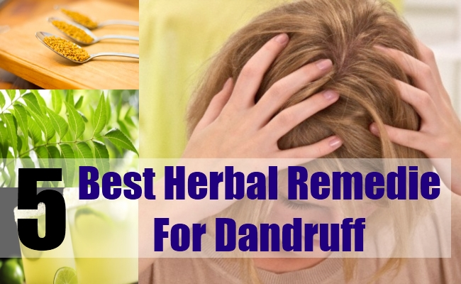 5 Best Herbal Remedies For Dandruff