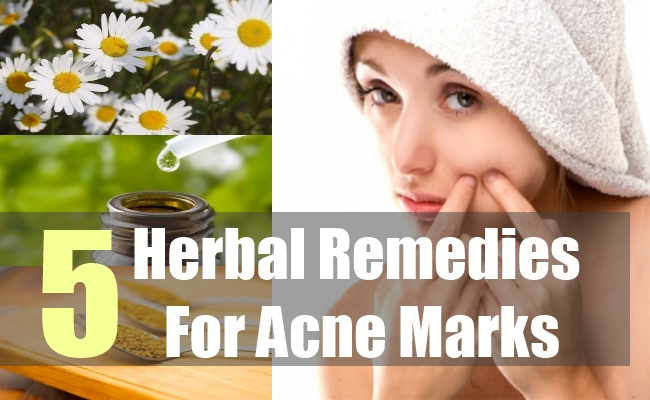 5 Herbal Remedies For Acne Marks