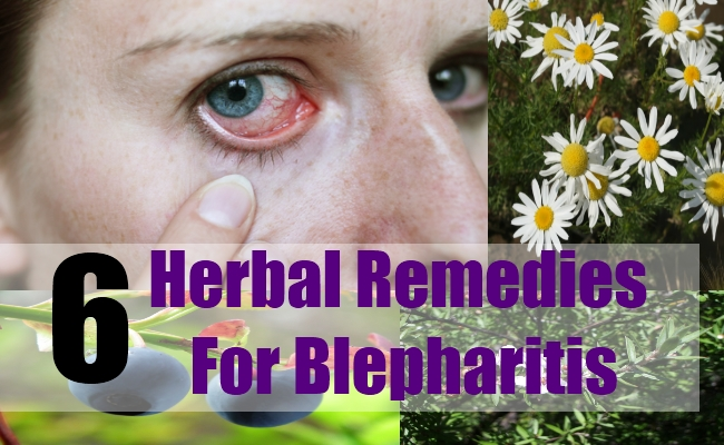6 Herbal Remedies For Blepharitis