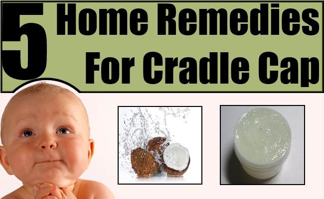 Cradle Cap