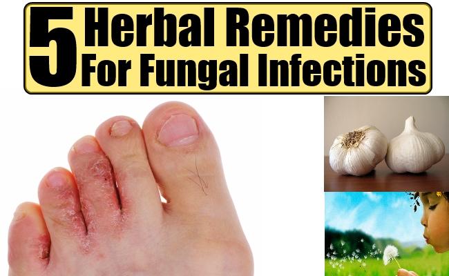 Best Antifungal Home Remedy