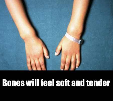 Bone Softening And Decreased Bone Density