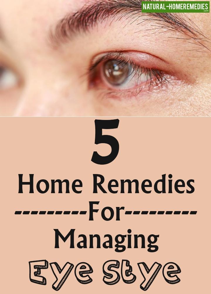 Home Remedies For Managing Eye Stye