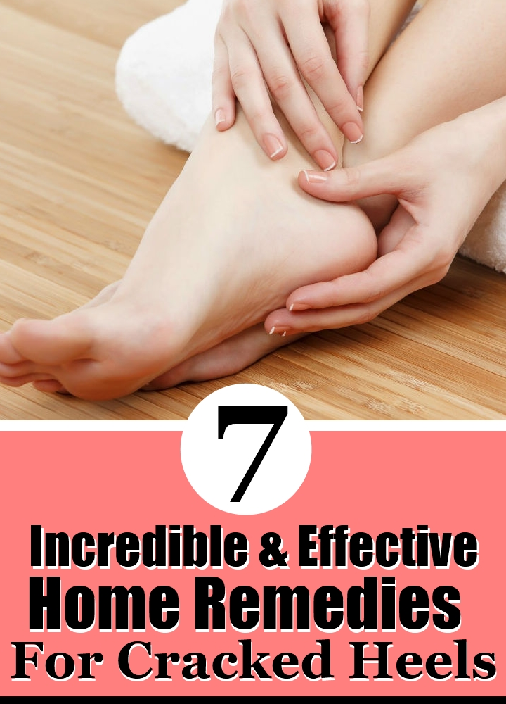 7 Incredible and Effective Home Remedies For Cracked Heels