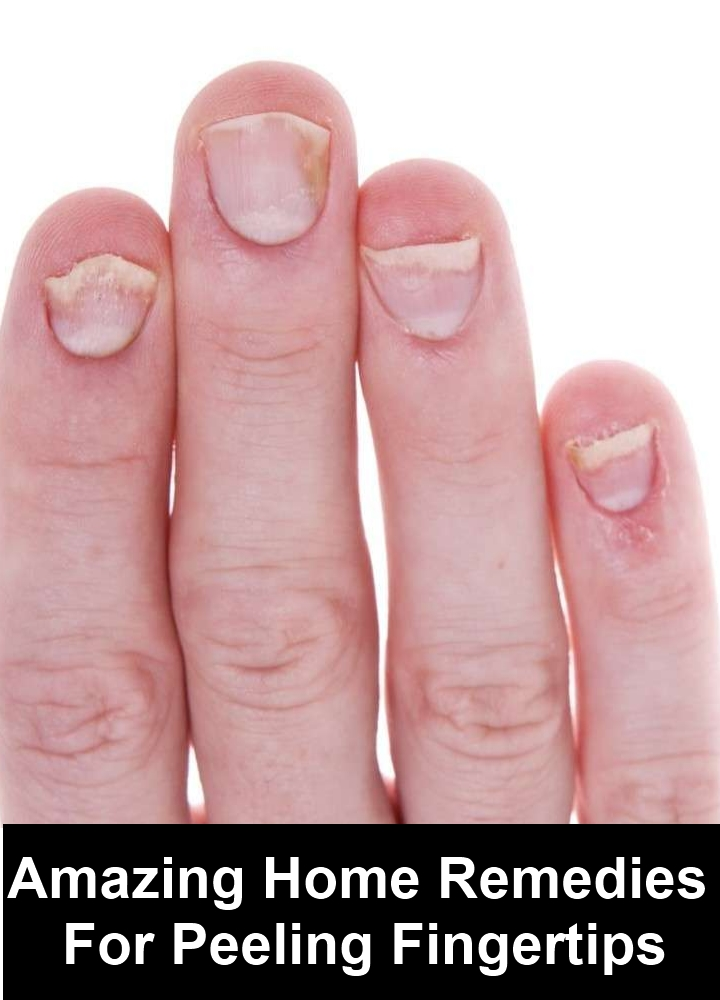 Amazing Home Remedies For Peeling Fingertips