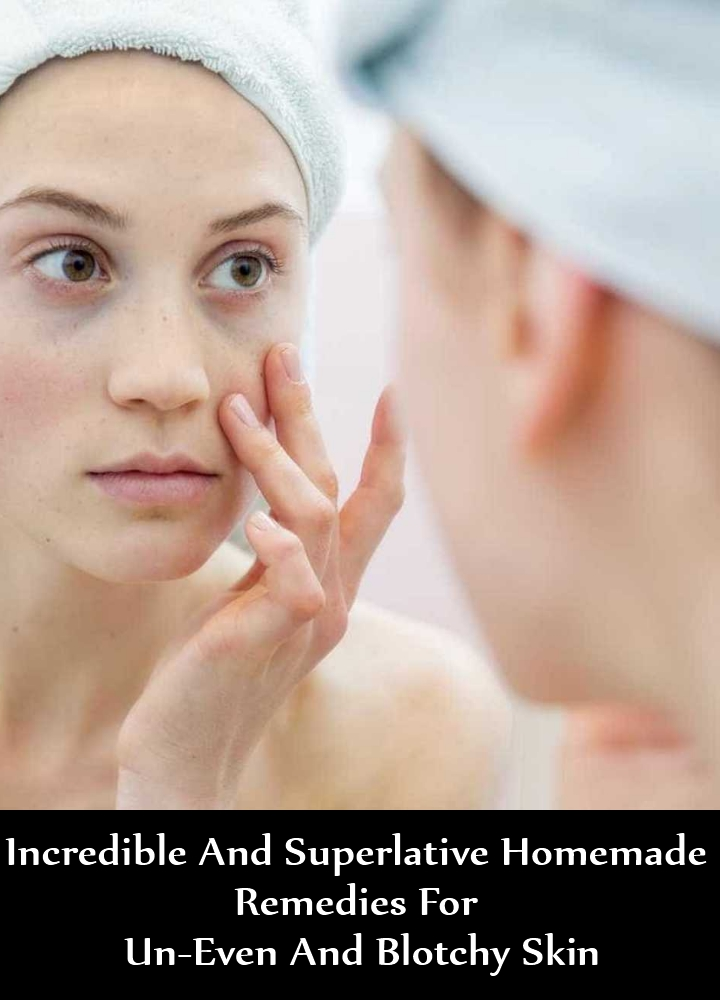 Incredible And Superlative Homemade Remedies For Un-Even And Blotchy Skin