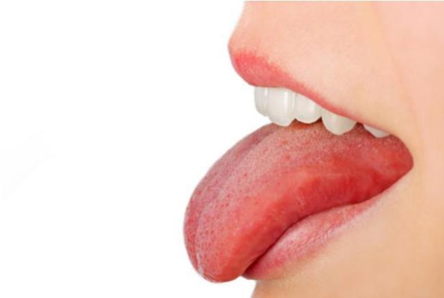 Red Tongue