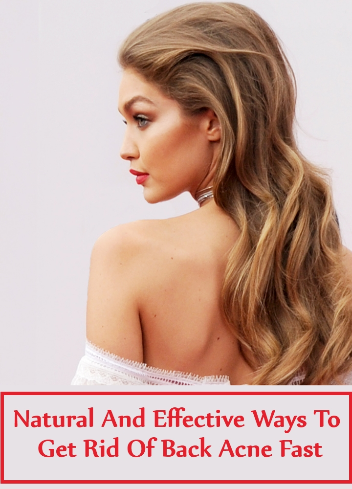Natural And Effective Ways To Get Rid Of Back Acne Fast