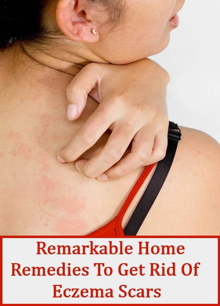 Remarkable Home Remedies To Get Rid Of Eczema Scars
