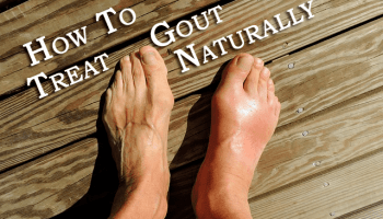 food to prevent uric acid indian recipes for gout patients severe ankle pain gout