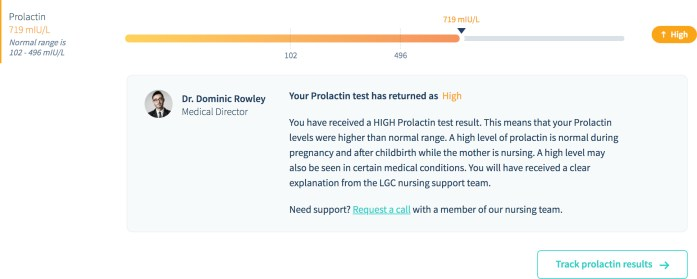 My prolactin result.