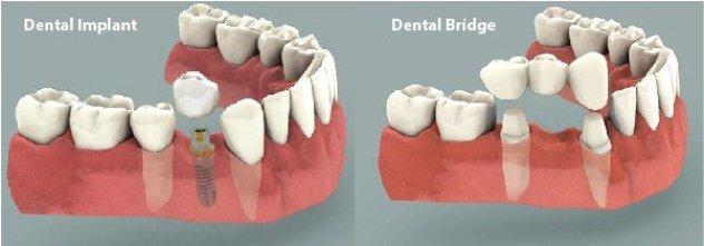 Implan atau Jembatan Gigi- Global Estetik Dental Care