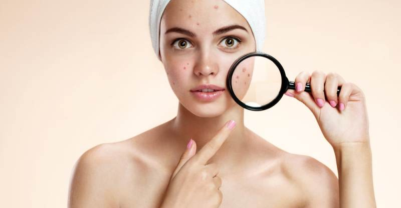 How To Get Rid Of Acne (Pimples)