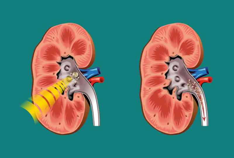 10 Home Remedies For Kidney Stones