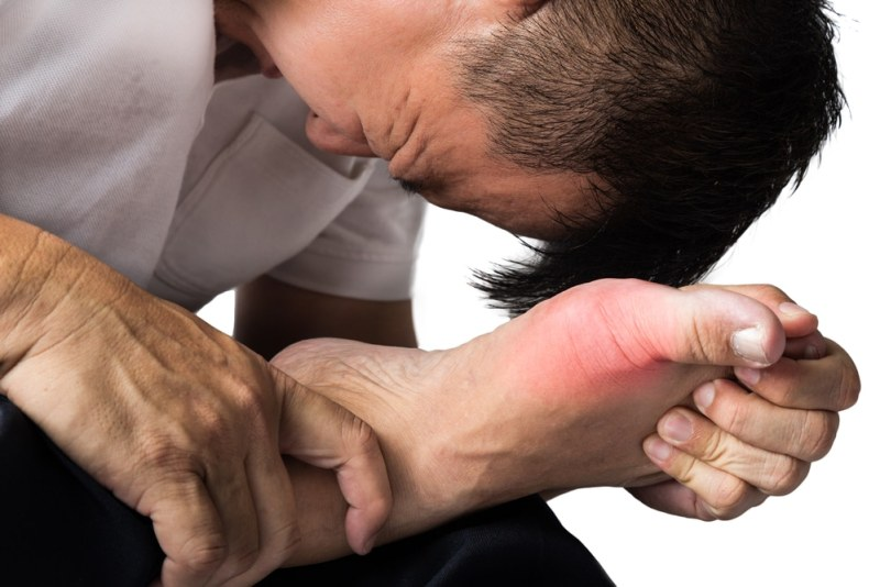 11 Home Remedies for Gout