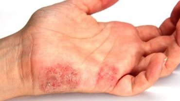 Dermatitis: Symptoms, Causes and Treatment
