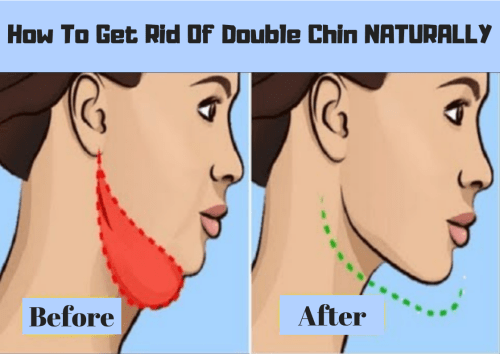HOW TO Get Rid Of Double Chin NATURALLY