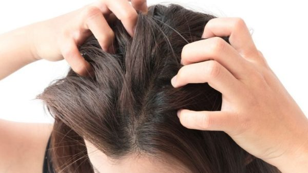HOW TO Get Rid Of Itchy Scalp Naturally