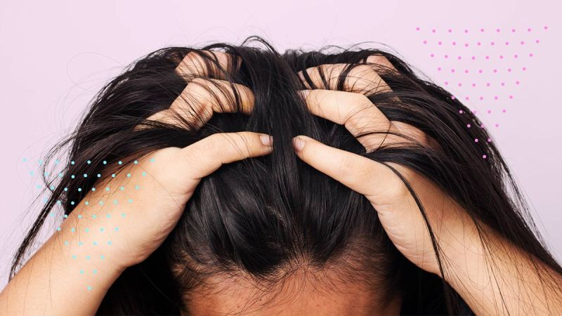 Itchy Scalp Treatment Products