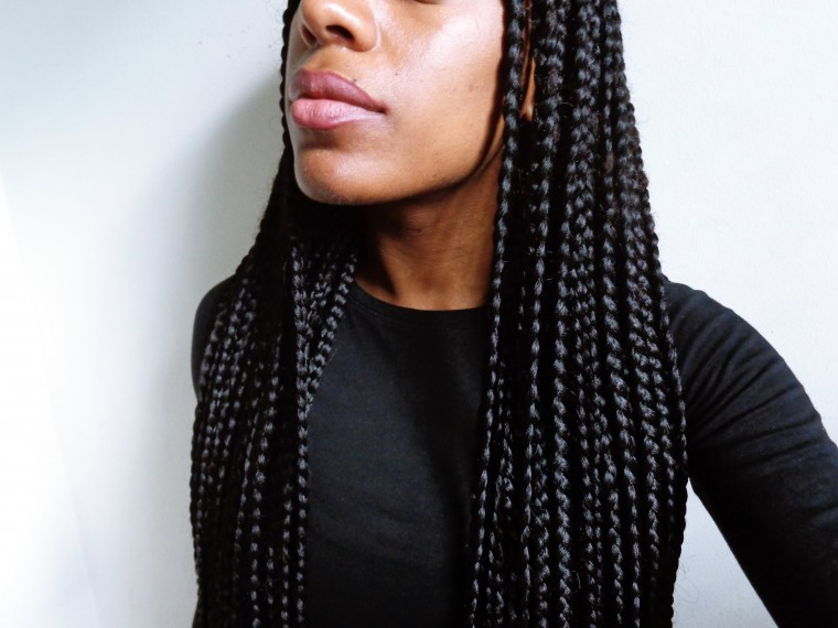 Itchy Scalp Box Braids