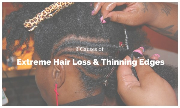 3 Causes of Extreme Hair Loss & Thinning Edges