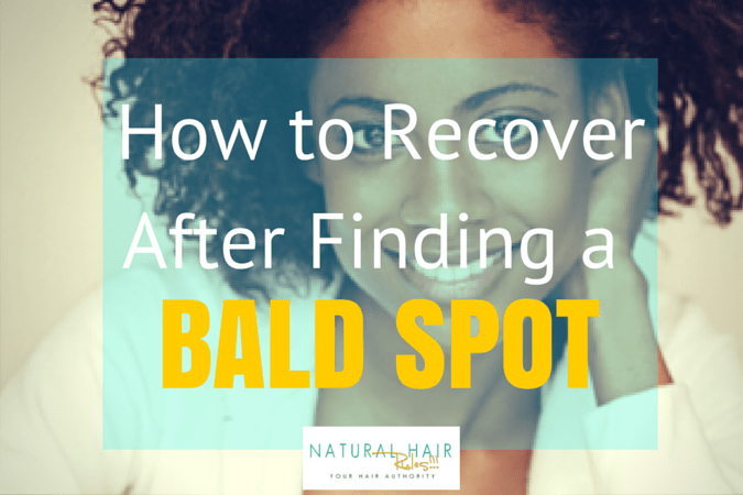 How to Recover After Finding a Bald Spot (1)