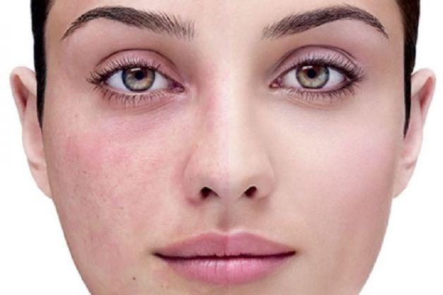 acne-rosacea1
