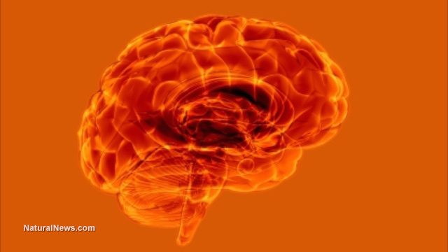 https://i1.wp.com/www.naturalnews.com/gallery/640/Medical/Brain-Scan-Orange.jpg