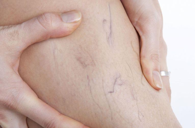¿Cómo prevenir y combatir las várices de manera natural?