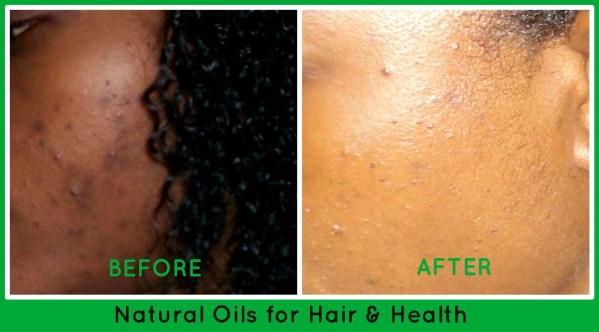 before and after acne natural oils for hair & health