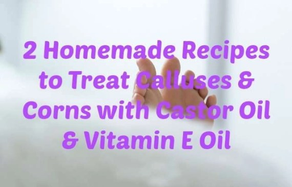 2-Homemade-Recipes-to-Treat-Calluses-and-Corns-with-Castor-Oil-and-Vitamin-E-Oil