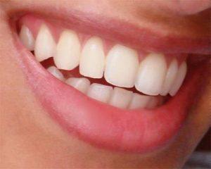 Natural-smile-cambio-seguro-de-amalgamas-diseño-de-sonrisa- (13)