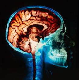 Coloured magnetic resonance imaging (MRI) scan of the brain from the side, combined with a coloured neck and skull X-ray.