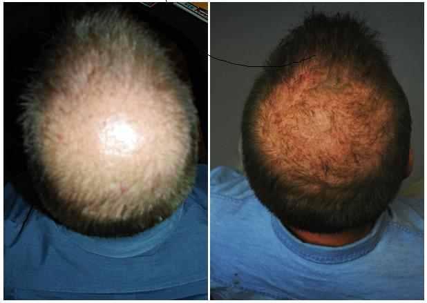 Hair Loss Alopecia Or Thinning Hair Has An Effective