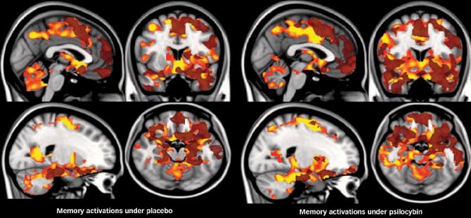 Reparação do cérebro com o uso de Cogumelos Mágicos Psilocybe Cubensis