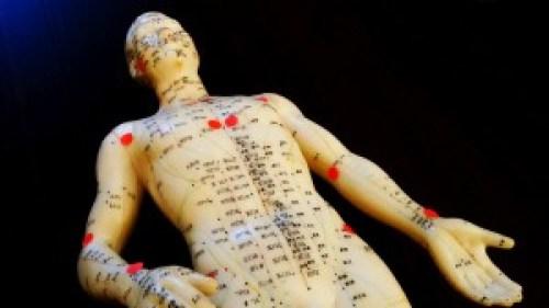 Tender- und Akupunkturpunkte: bei der Fibromyalgie überschneiden sie sich.