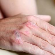 La Psoriasis: tratamientos naturales y como convivir con ella