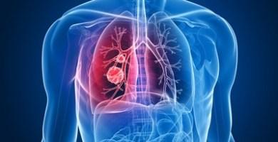 La relación del Pulmón e Intestino Grueso con la Medicina Natural