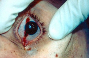 "A photograph showing the postmortem change in the eye of a deceased, illustrating the ""Tâche Noire de la Sclérotique""."