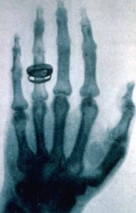 The first X-ray picture ever taken by William Röntgen of his wife's hand and wedding ring.