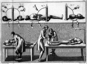 A lithography showing Galvani's nephew Giovanni Aldini with his assistants in his laboratory, with diagrams of electrical circuits connected to human corpses and detached heads.