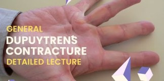 Dupuytren´s Contracture – Simple Detailed explanation