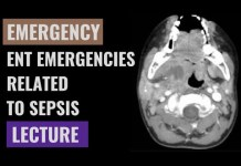 ENT emergencies related to sepsis – Detailed explanation – Emergency Medicine
