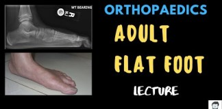Adult flat foot 🦶 – Orthopaedics – Detailed Lecture
