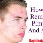 कील – मुंहासे हटाने के 15 बेहतरीन उपाय How to Remove Pimples and Acne in Hindi